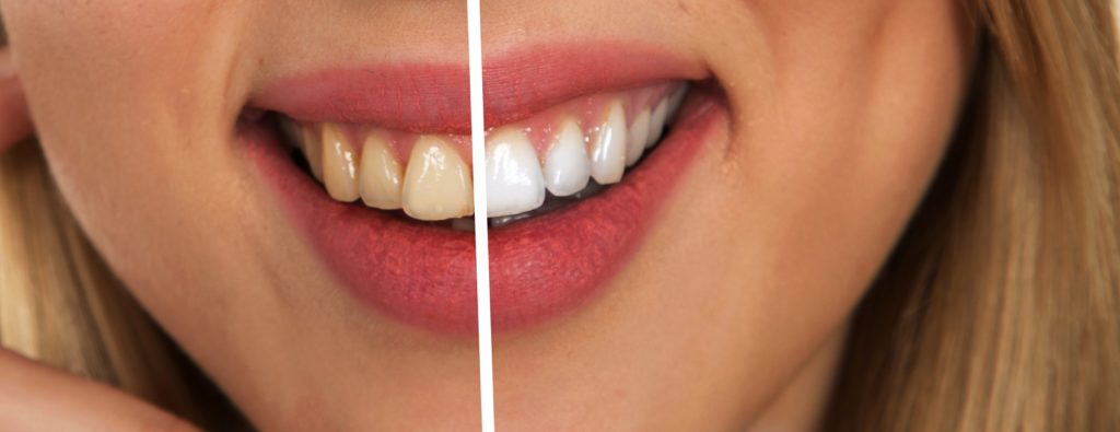 https://medical-intuitives.com/wp-content/uploads/2019/Natural Remedies - Periodontal Disease
